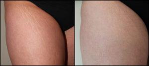 Karboksyterapia - przełom nie tylko w kosmetologii
